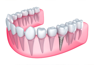 benefits of dental implants in Irvine, CA 92618