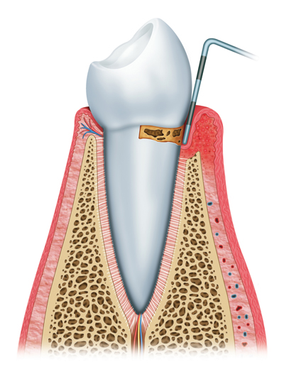 Stages of Gum Disease Irvine, CA