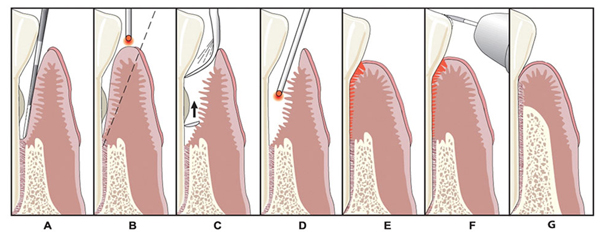 Diagram of gum surgery in Irvine, CA