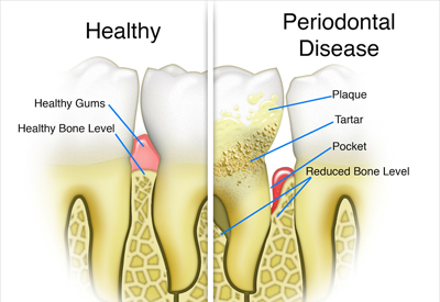 periodontal disease in Irvine, CA