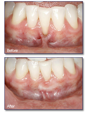 periodontal plastic surgery in Irvine, CA 92618