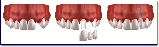 dental implants in Irvine, CA 92618